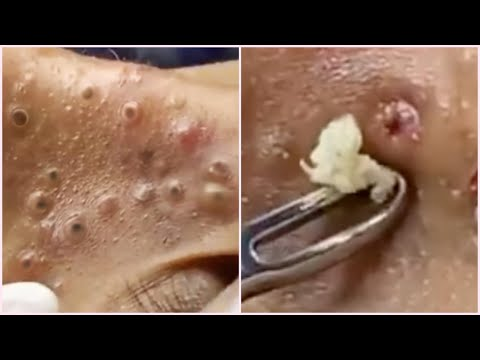 Blackheads on Nose and Forehead - Best Pimple Popping Videos