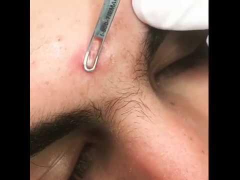 Выдавливание прыща/Squeezing pimple