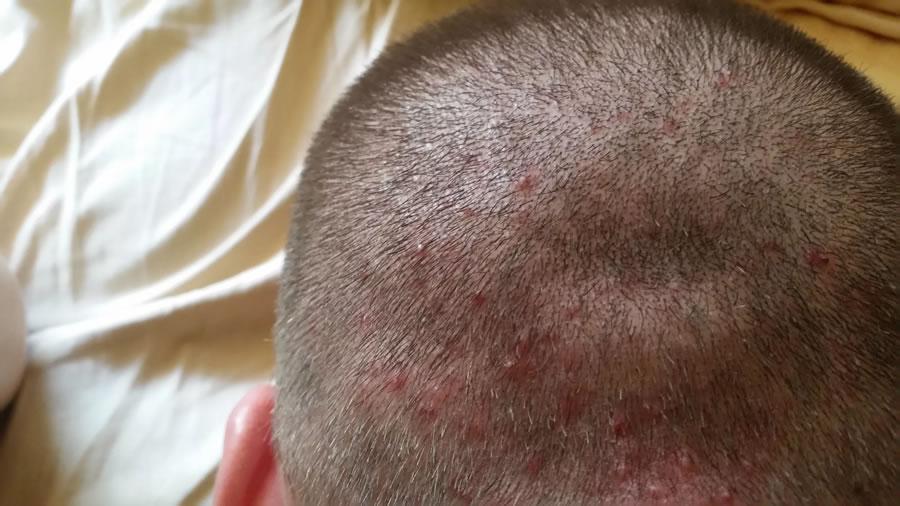 Прыщи на голове - Симптомы проявления