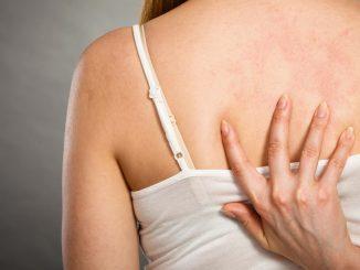 Прыщи на спине у женщин - причины и лечение