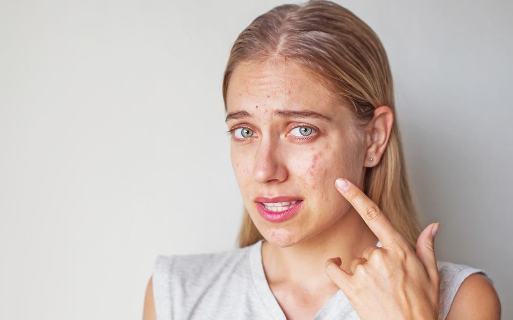 Прыщи на лице - где чаще выскакивают?