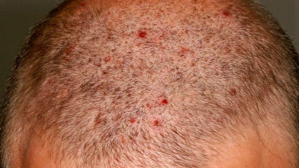 Воспаления в волосах у мужчин